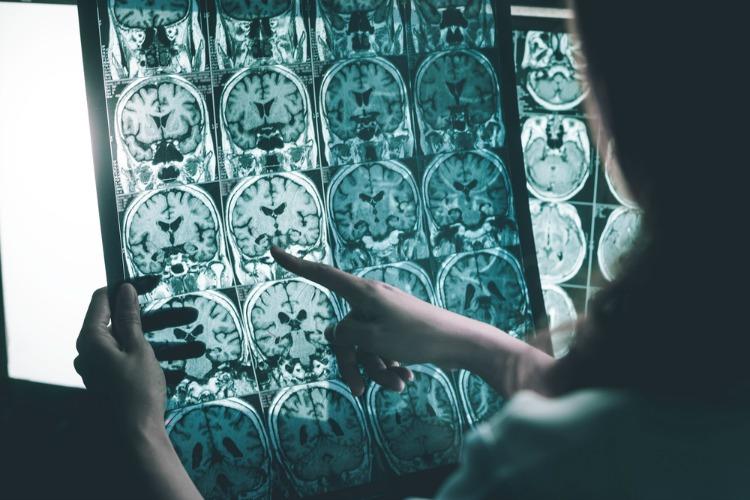Cannabis for Alzheimer's brain scans